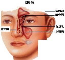航空性副鼻腔炎(気圧性副鼻腔炎・蓄膿症)の症状・原因・治療
