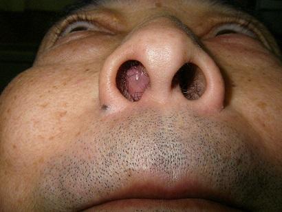 鼻茸とは?治らない時は手術かも...